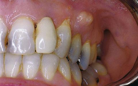 Абсцесс зуба: симптомы и лечение
