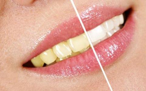 Какие виды профессионального отбеливания зубов бывают?