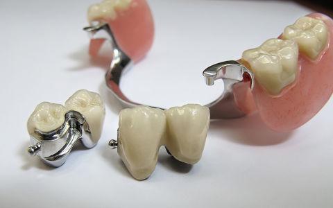 Что такое аттачмент в стоматологии