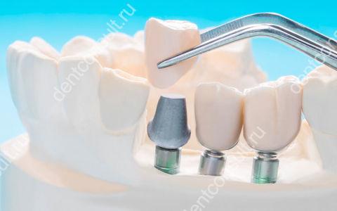 Зубные импланты – противопоказания