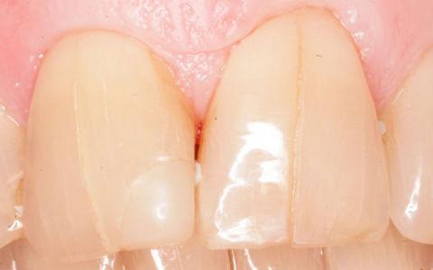Треснул (раскололся) зуб — что делать