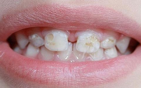 Некариозные заболевания детских зубов