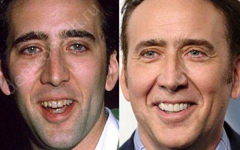 Что такое голливудская улыбка?