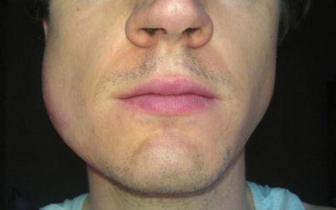 Что делать если опухла щека, но зуб не болит
