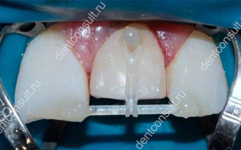 Что такое экструзия зуба