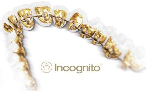 Брекеты Incognito: обзор бренда