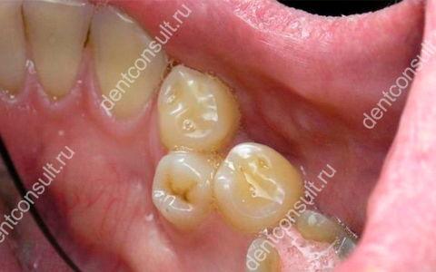 Бывают ли молочные зубы у взрослых людей и нужно ли их сохранять
