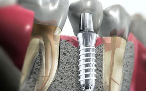 Сколько стоит имплант зуба