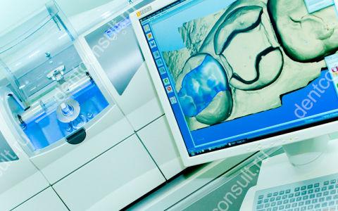 Моделирование зубных протезов