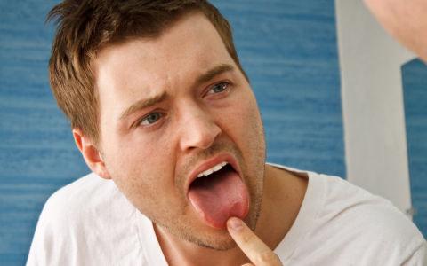 Что такое глоссалгия и как ее лечить