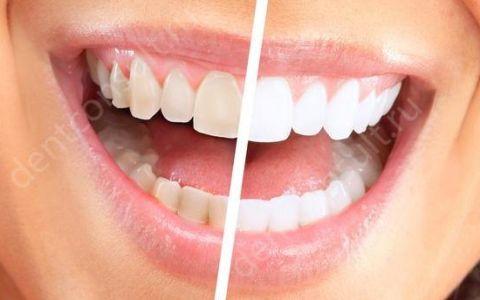 Зачем нужна гигиеническая чистка зубов и как она происходит?