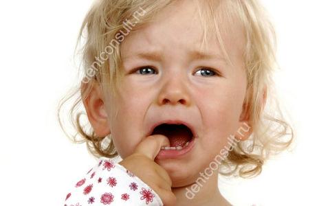 Что делать, если откололся молочный зуб у ребенка