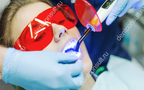Лазерное отбеливание зубов