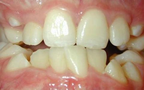 Ретенция зуба — зуб в десне, что делать
