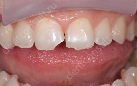 Варианты реставрации после травмы зубов, вывиха, ушиба, перелома