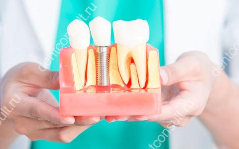 Через какое время после удаления зуба можно ставить имплант?