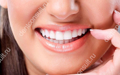 Виниры на зубы плюсы и минусы