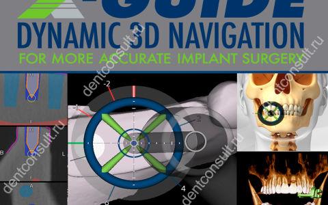 X-Guide или навигационная имплантация: обзор тренда
