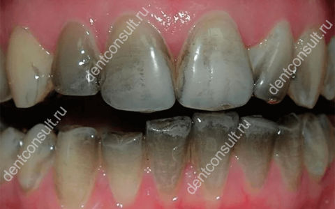 Почему чернеют зубы у взрослых