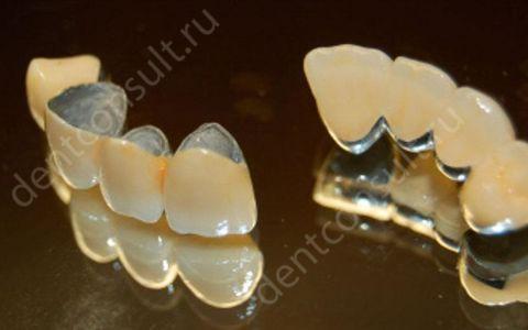 Сколько стоит поставить зубную коронку в Москве