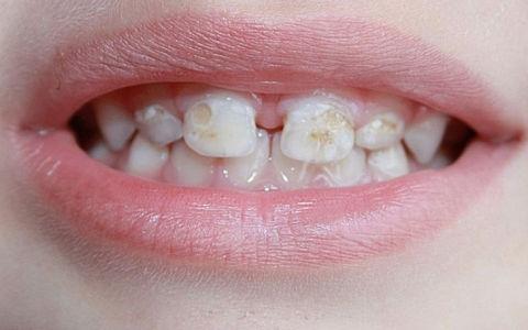 Гипоплазия зубов у ребенка