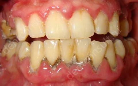 Почему десна отходит от зуба и как лечить