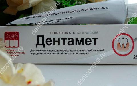 «Дентамет» – гель стоматологический: подробный обзор средства