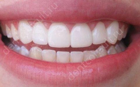 В чем разница между винирами и люминирами и что выбрать для реставрации зубов