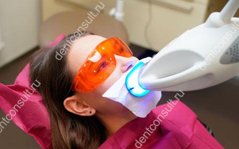 Фотоотбеливание зубов: обзор технологий