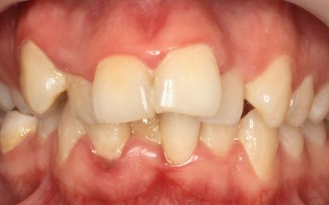 Что такое скученность зубов и как ее лечить