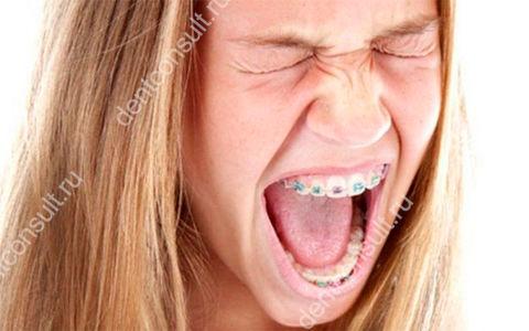 Почему появляется боль при ношении, установке и снятии брекетов