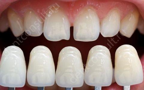 Виды и стоимость реставрации зубов, показания и противопоказания