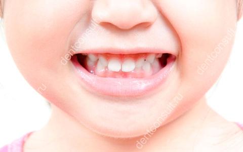Молочный прикус – решающая роль в формировании улыбки