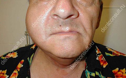 Флегмона челюсти