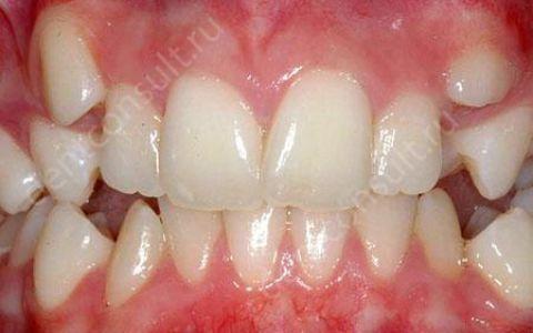 Как можно выровнять зубы, обзор 3 самых современных методов!