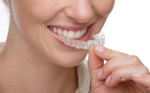 Как применять капы для отбеливания зубов