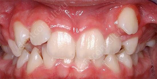 пример как зубы налезают друг на друга