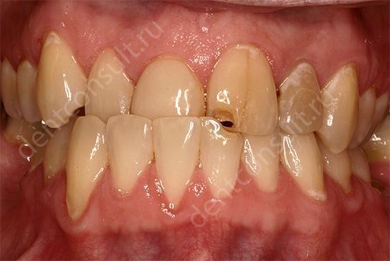 последствия неправильного роста зубов