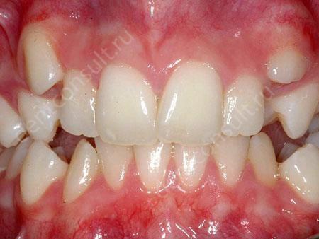 зубы налезают друг на друга