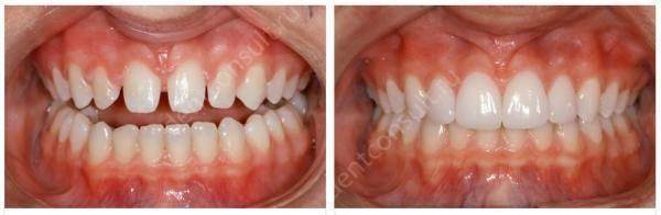 зубы до виниров и после фото
