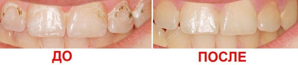подобного типа, почему не взялась анестезия зуба (Железнодорожный