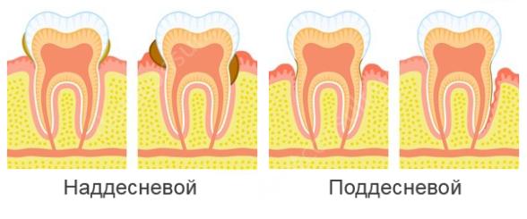 наддесневой и поддесневой зубной камень