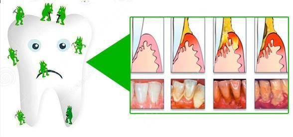 причины зубного камня