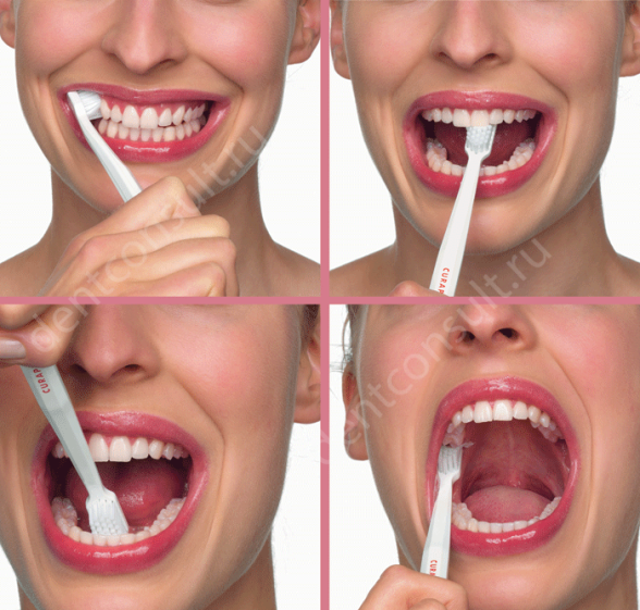 profilaktika_zubnogo_naleta