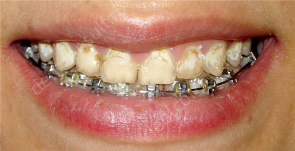 брекеты и зубной налет