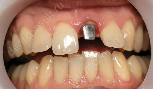 Зубные вкладки под коронку: какие бывают, особенности металлической культевой вкладки на зуб