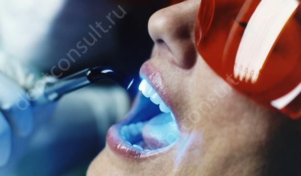 Фото: Лазерное отбеливание зубов