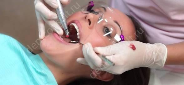 профисиональная чистка зубов