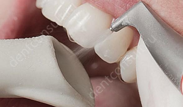 профисиональная чистка зубов от черного налета