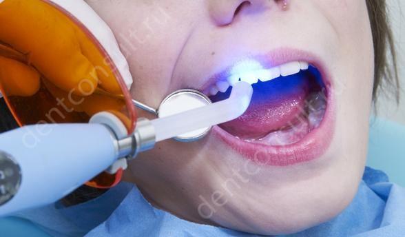 светоотверждаемые пломбы на передних зубах